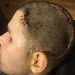 Staples Removed from Skull